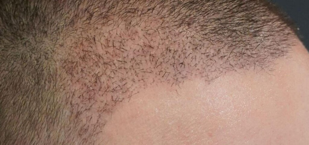 patient's head 10 days after the hair transplant
