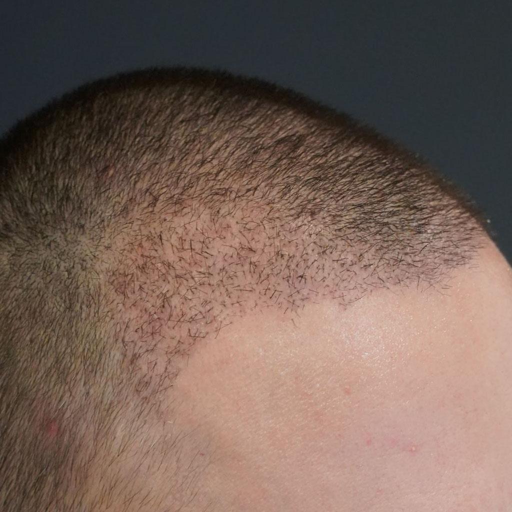 pacjent dwa tygodnie po przeszczepie włosów