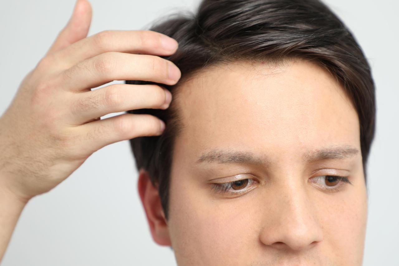 Przeszczep włosów metodą FUE