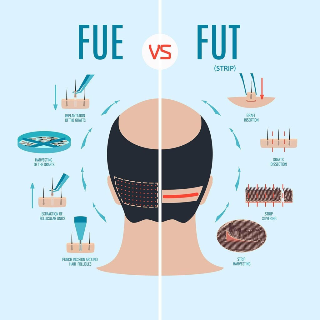 hair transplant strip hair transplant fut differences hair transplant fue