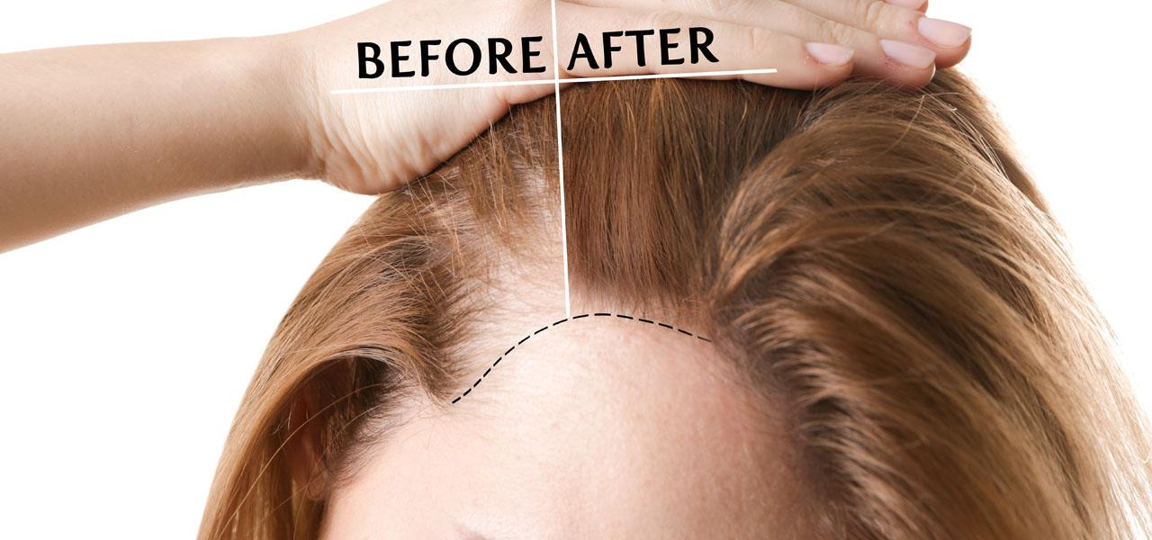 Hair transplant in women