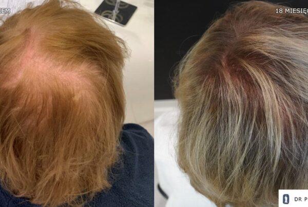 Efekt po zabiegu przeszczepu włosów u kobiety Efekt po zabiegu przeszczepu włosów u kobiety - 1500 graftów