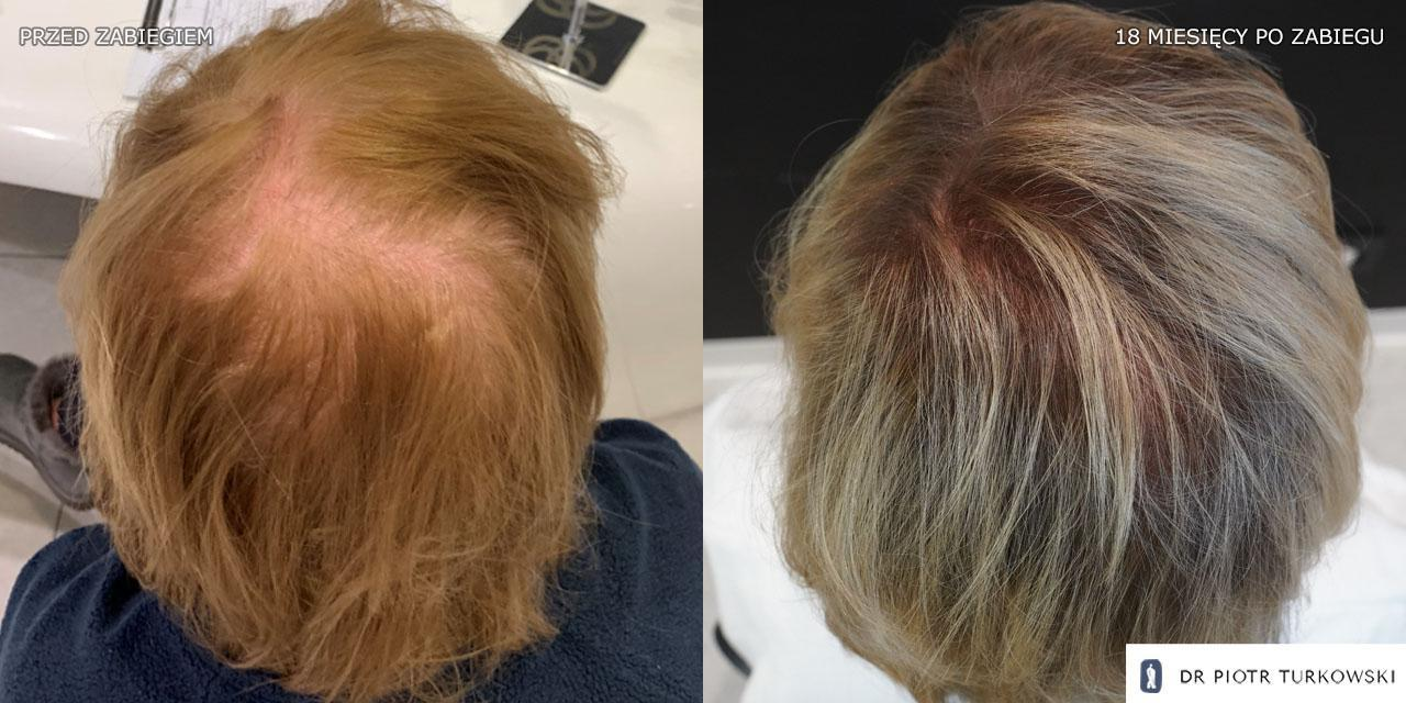 The results after the hair transplant surgery for women. The results after the hair transplant surgery for women - 1500 grafts