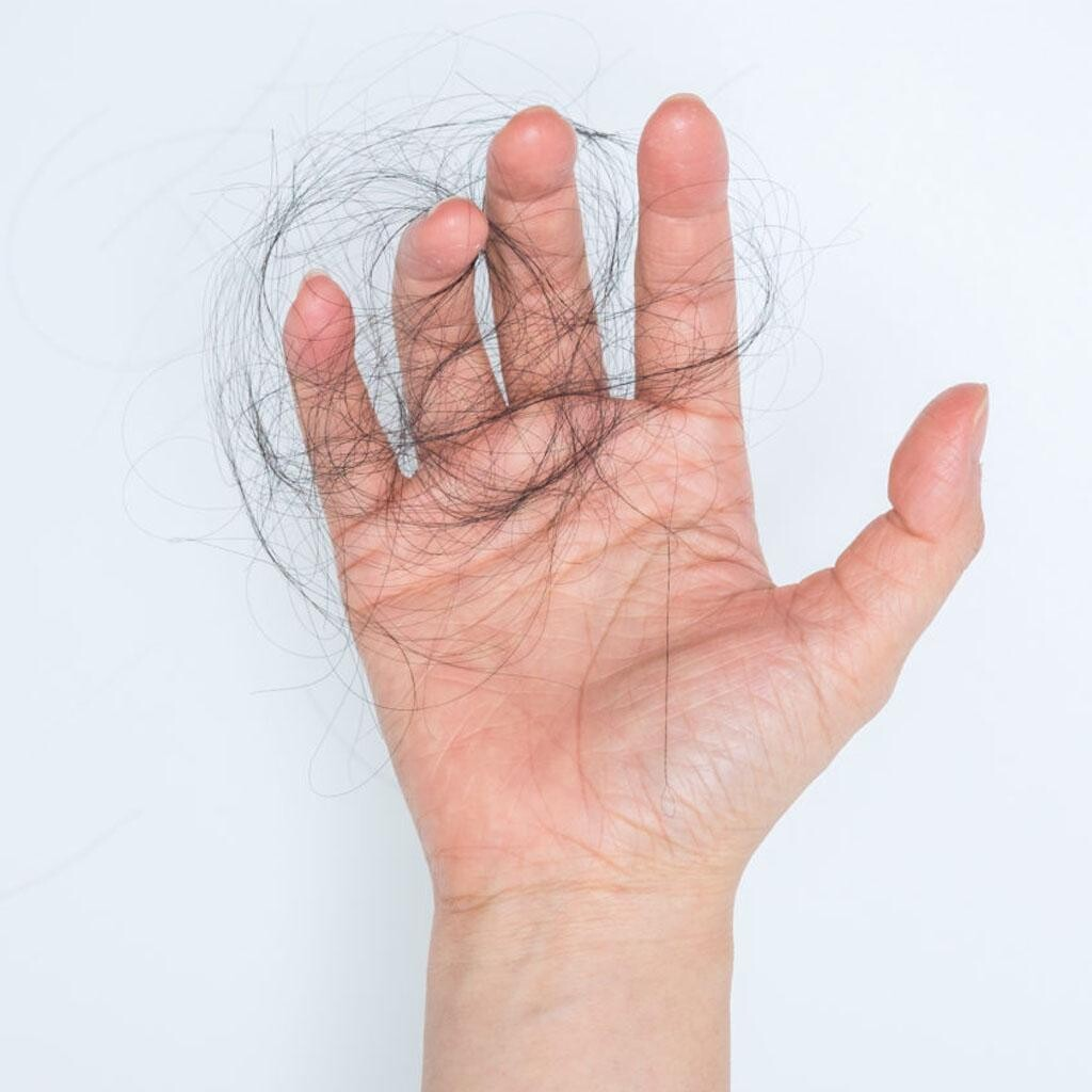 Falling out hair