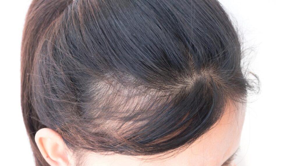 łysienie androgenowe leczenie