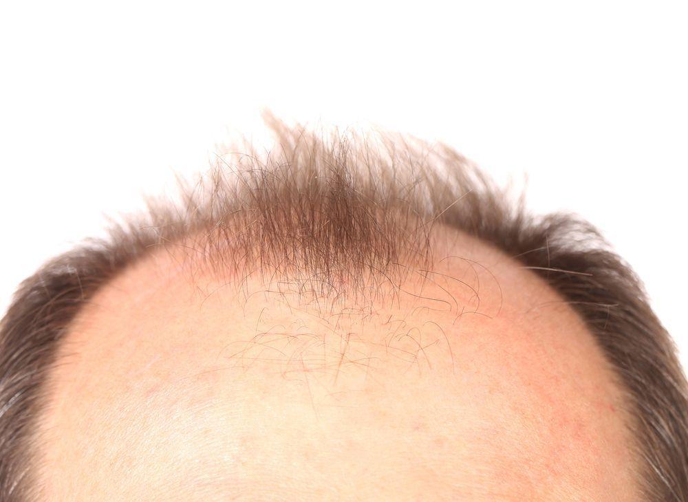 Alopecia, or hair loss, is a curable disease