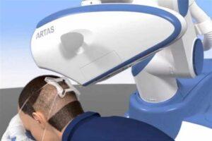 Robot do transplantacji wlosow artas