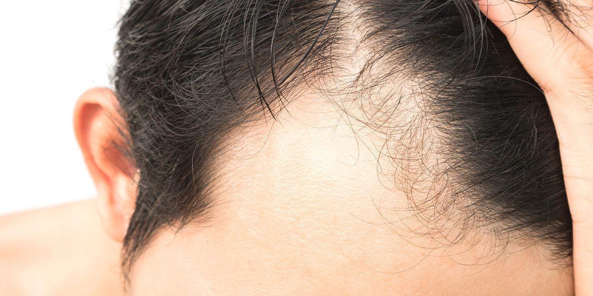 Łysienie androgenowe – leczenie, dieta, witaminy