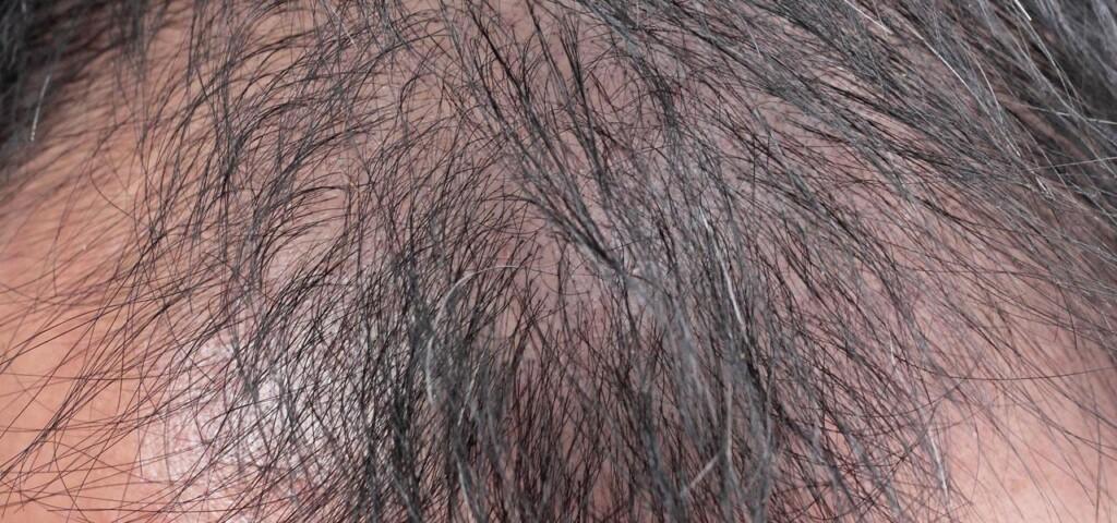 androgenowe łysienie u mężczyzny
