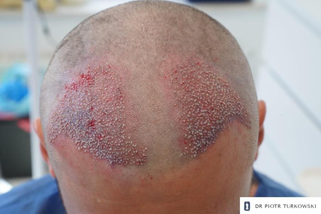 efekt bezpośrednio po zabiegu przeszczepu włosów