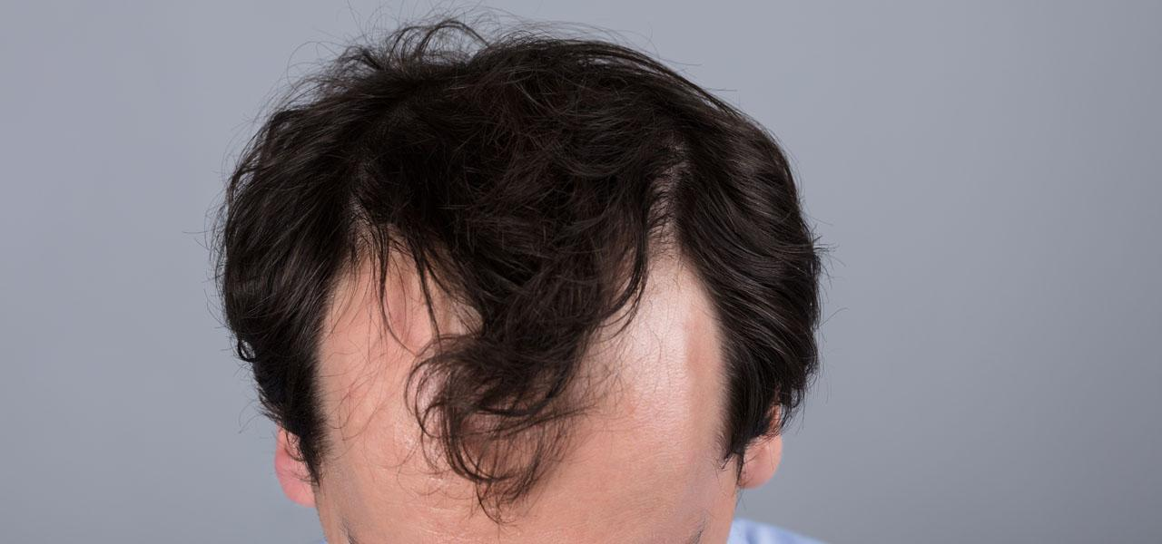 Androgenetic alopecia – treatment, diet