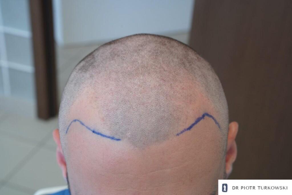 obszar biorczy po ogoleniu włosów oraz zaznaczeniu linii włosów