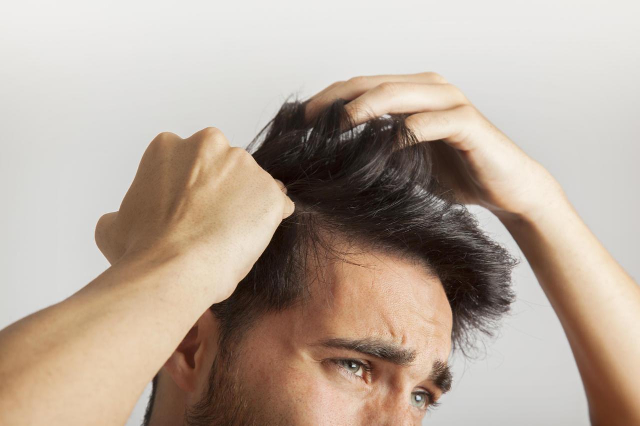 Hair transplant in men