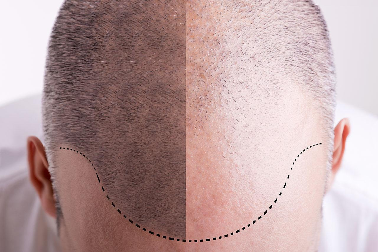 Hair transplant – FUE (Follicular Unit Extraction method)