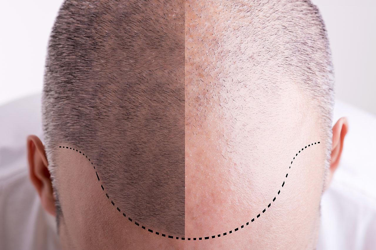 Hair transplant ARTAS or FUE?