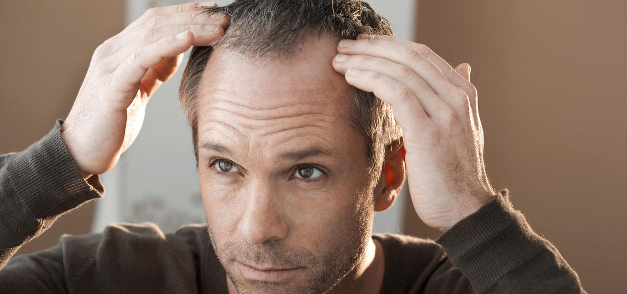 Receding hairline in men