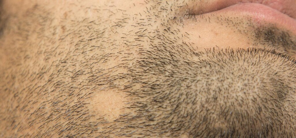 alopecia areata on the chin