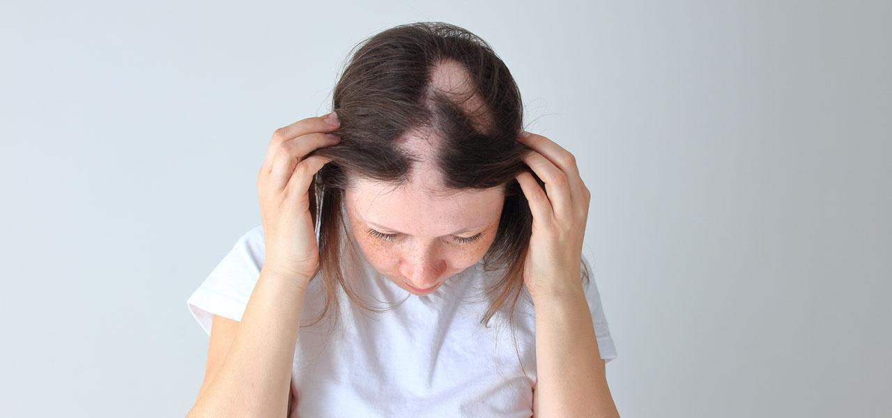 Alopecia areata – symptoms, treatment