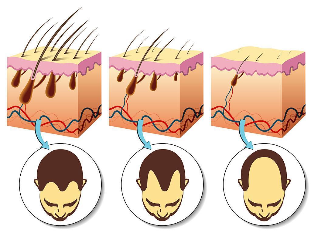 the process of hair loss