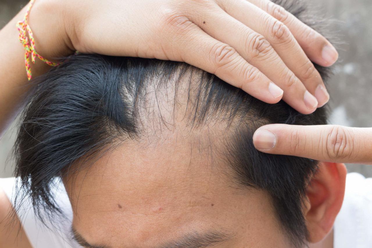 Łysienie plackowate – czy można wyleczyć?