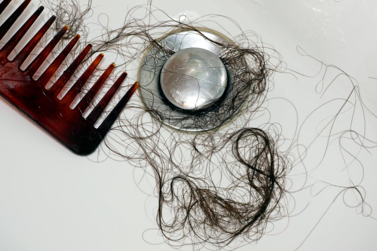 Hair loss – 9 causes of hair loss
