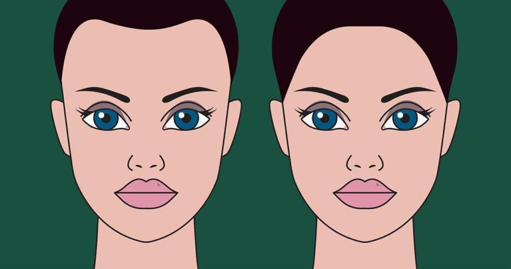 usunięcie zakoli u kobiet za pomocą przeszczepu włosów
