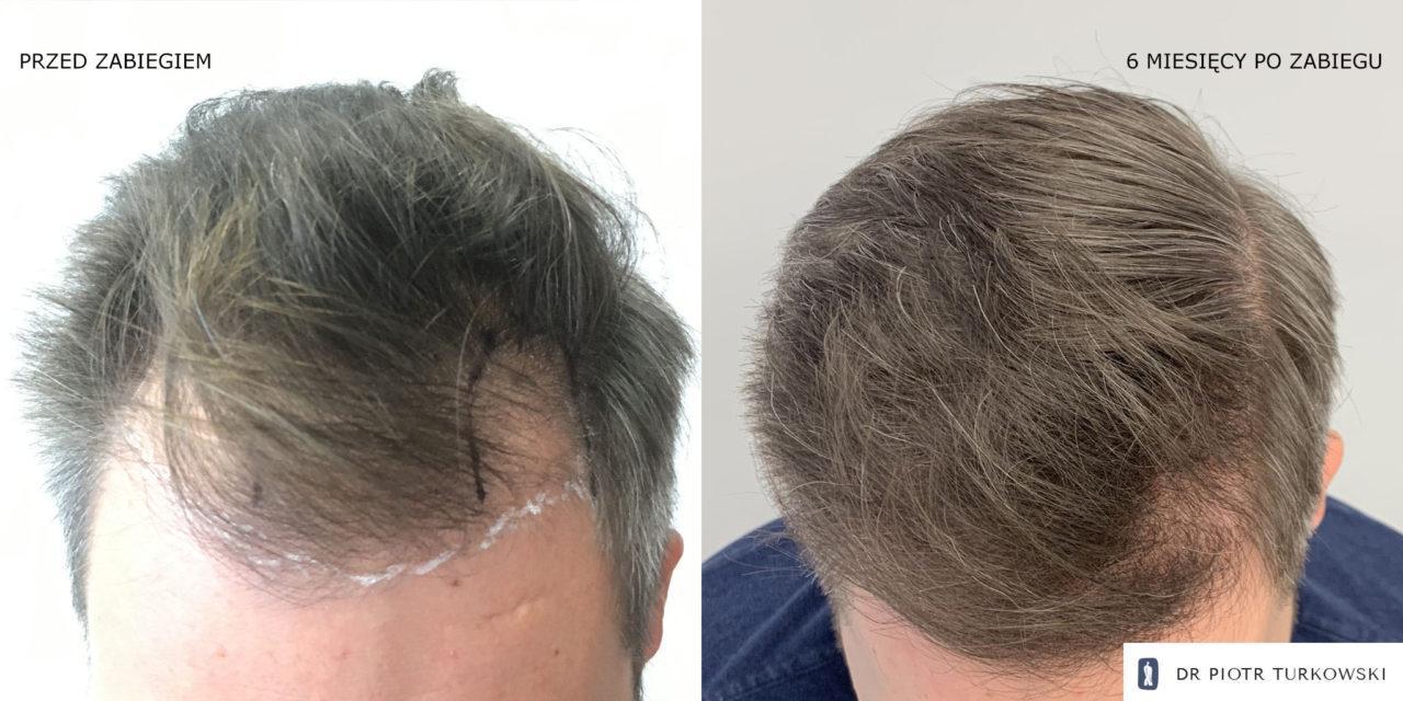 Metamorfoza Pana Henryka przeszczep włosów FUE efekt przed i po zabiegu