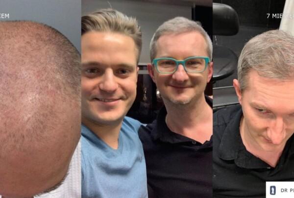 Metamorphosis of Mr. Maciek - hair transplantation FUE - effect before and after the procedure