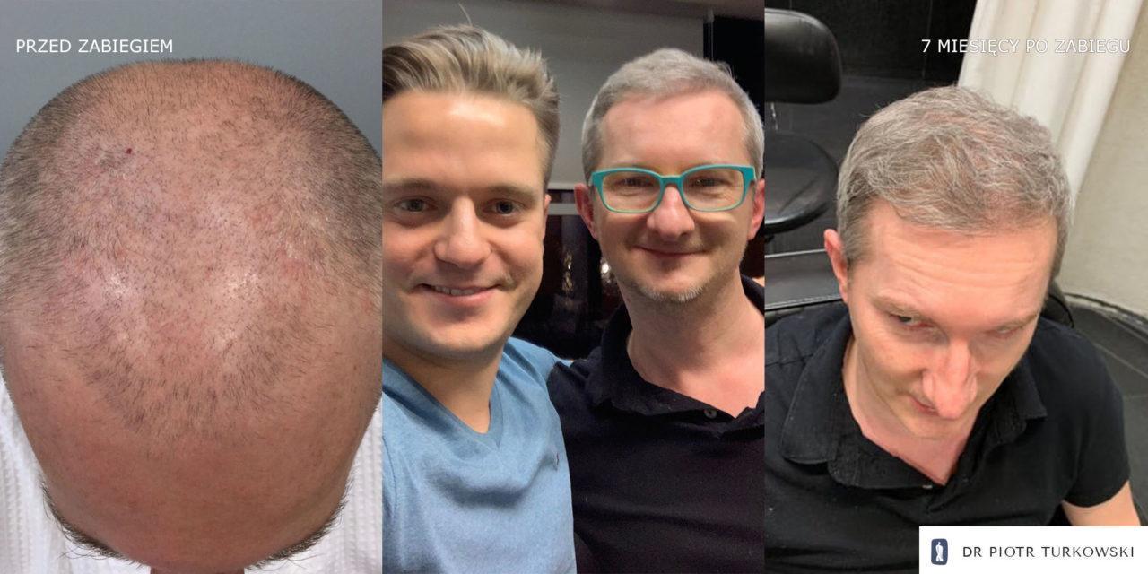 Metamorfoza Pana Maćka przeszczep włosów FUE efekt przedipozabiegu 5