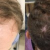 Metamorphosis of Mr. Mateusz - hair transplantation FUE - effect before and after the procedure