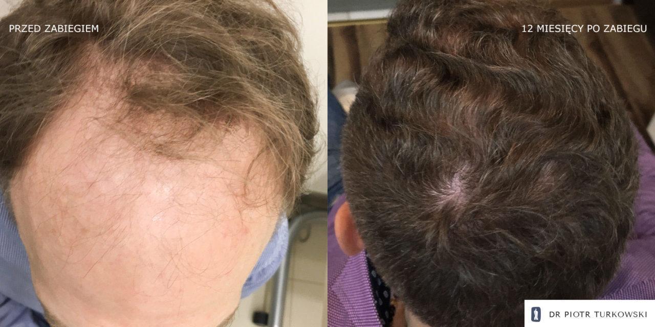 Metamorfoza Pana Mateusza przeszczep włosów FUE efekt przedipozabiegu