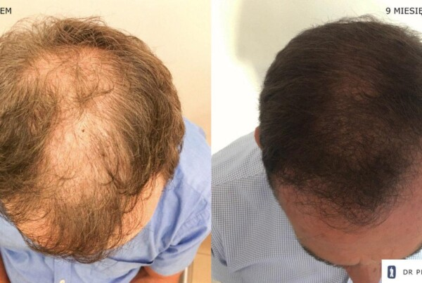 Metamorphosis of Mr Paweł 2 - hair transplantation FUE - effect before and after the procedure