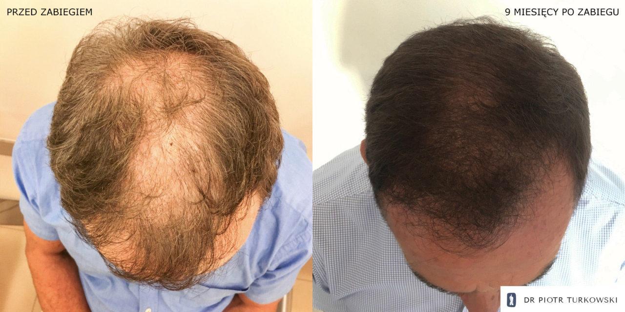 efekty transplantacji włosów pana pawła