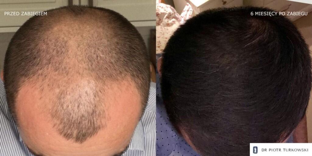 Metamorfoza Pana Pawła przeszczep włosów FUE efekt przed i po zabiegu