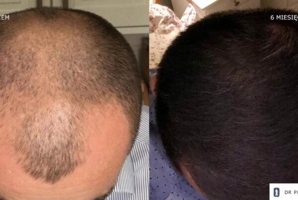Metamorphosis of Mr Paweł - hair transplantation FUE - effect before and after the procedure