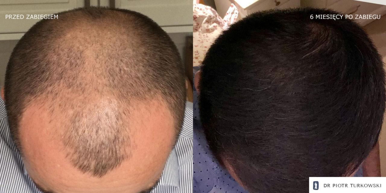 Metamorfoza Pana Pawła przeszczep włosów FUE efekt przedipozabiegu