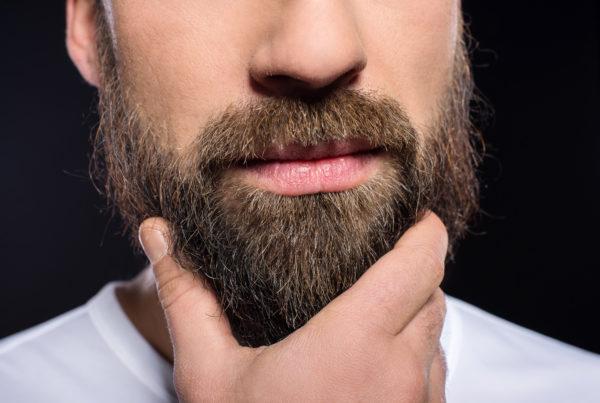 przeszczep włosów na brodzie