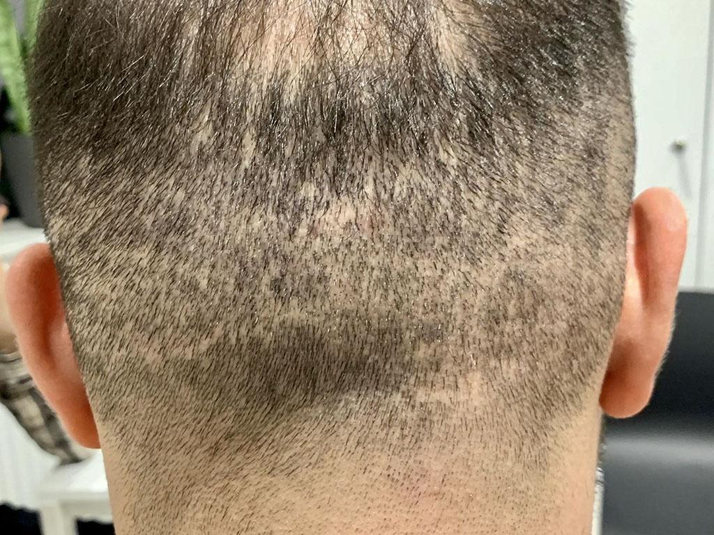 Efekt nieudanego przeszczepu włosów w Turcji