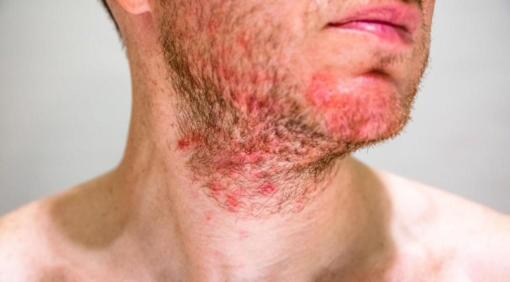 Łojotokowe zapalenie skóry w okolicach brody