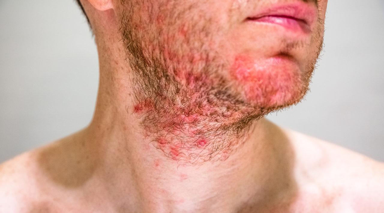 Seborrhoeic dermatitis
