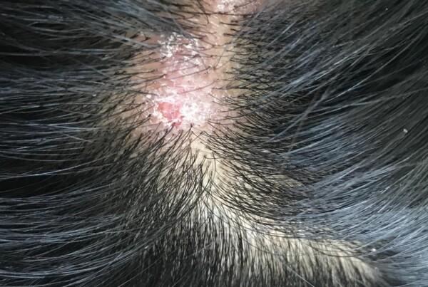 Krosty i strupy na głowie przyczyny zapobieganie