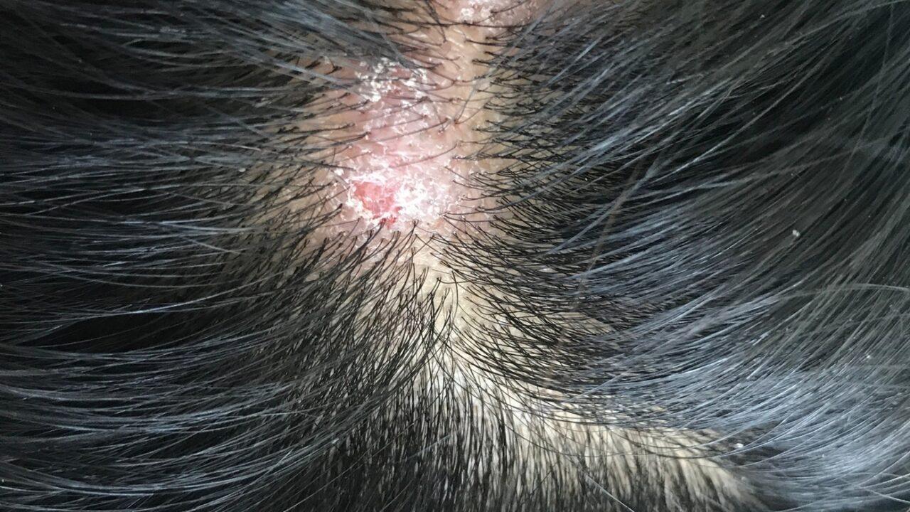 Krosty i strupy na głowie – przyczyny, zapobieganie