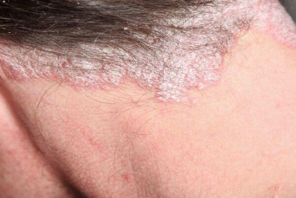 Łuszczyca skóry głowy objawy i leczenie