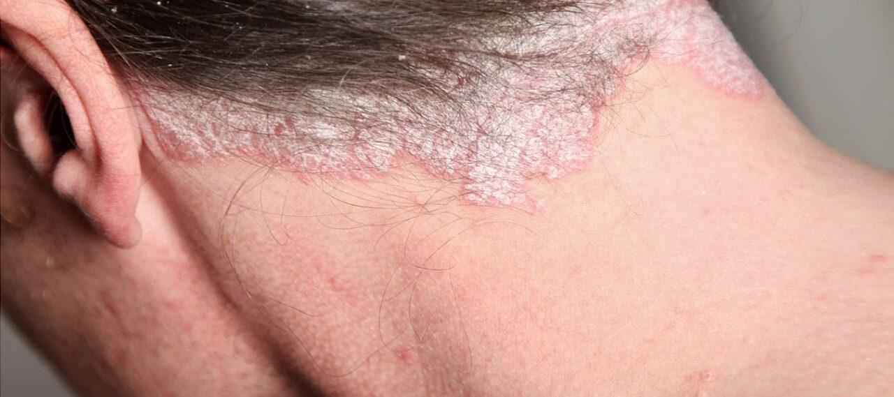 Łuszczyca skóry głowy – objawy i leczenie