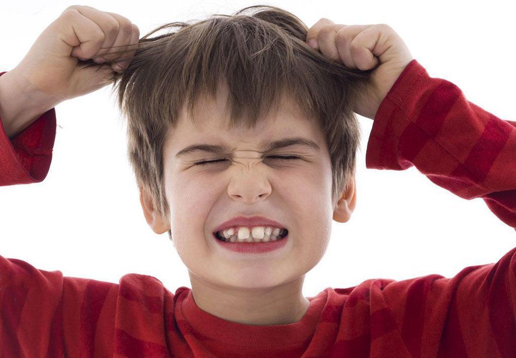 Trichotillomania u dzieci