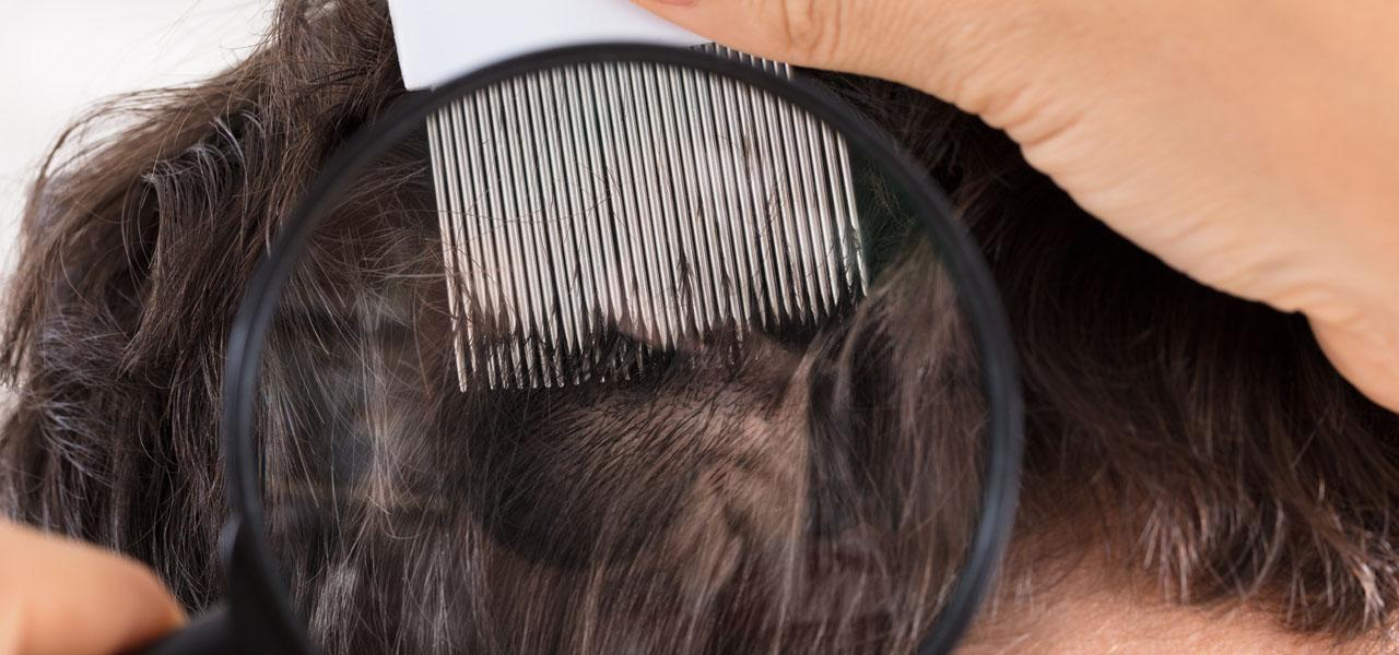 The 3 most common scalp diseases