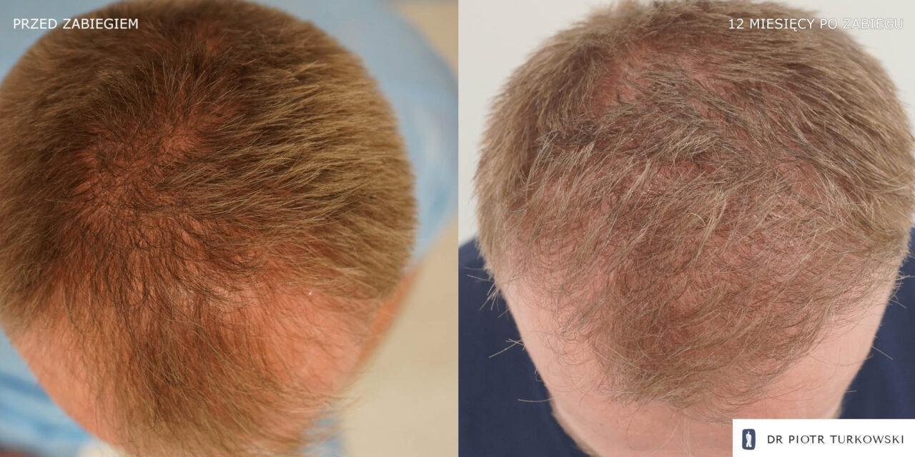 efekt przeszczepu włosów u Pana Michała