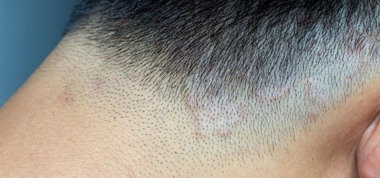Ringworm of the scalp – symptoms, treatment