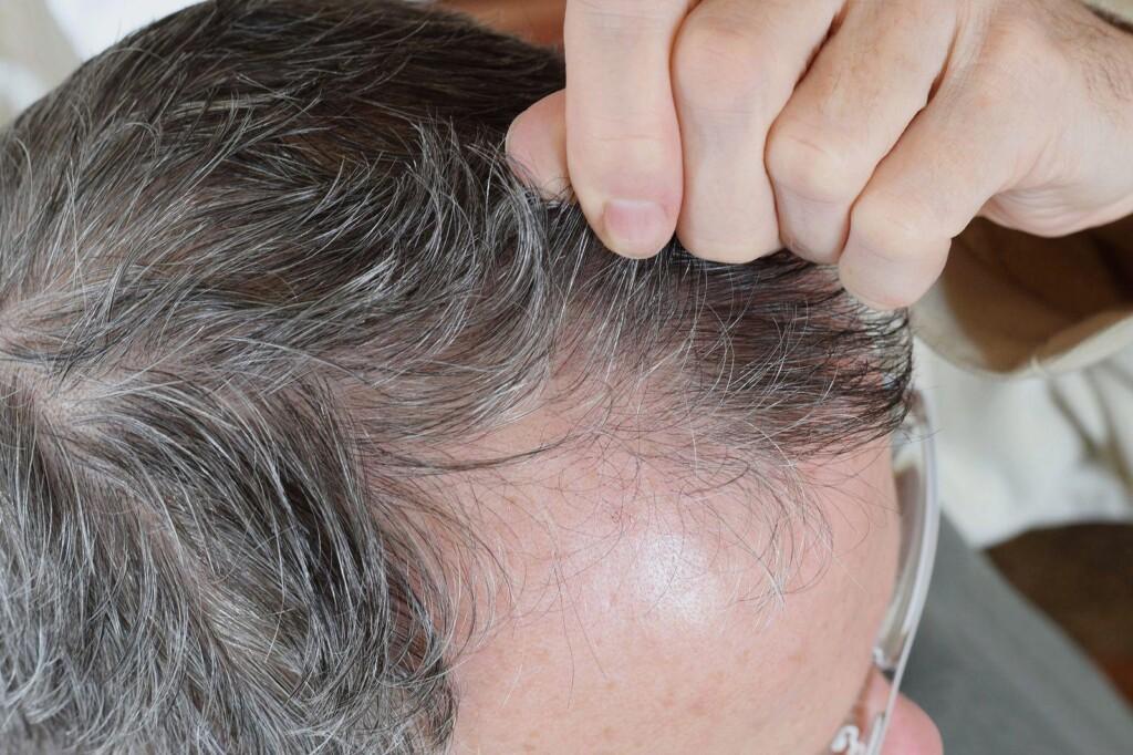 trichotillomania nieświadome wyrywanie włosów