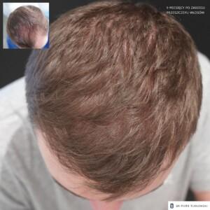 9 miesięcy po przeszczepie włosów od góry